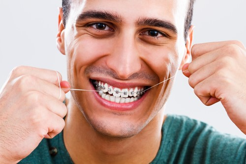 Helpful Tips for Flossing with Braces